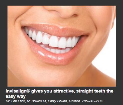 Invisalign Dentistry On The Bay Parry Sound Dentistry